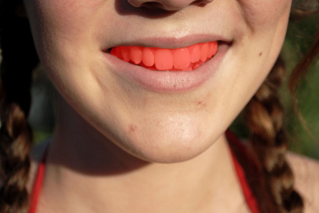 Vybielenie zubov