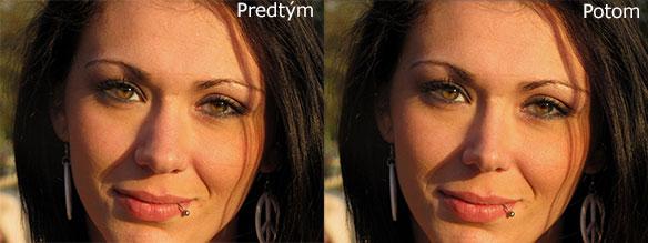 Zmenšenie nosa